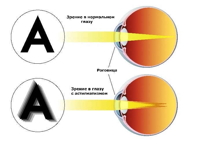 Как выглядят очки для зрения с линзами